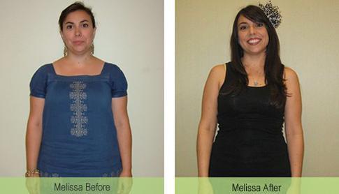Melissa 35 pound weight loss