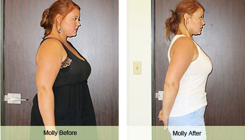 Molly Weight Loss Success