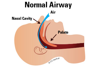In a healthy individual, air travels freely through the airway into the lungs.