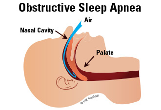 In the case of obstructive sleep apnea, enlarged tissue blocks the air passageway, disrupting breathing patterns.