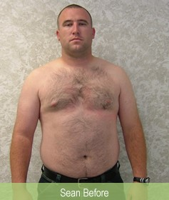 Sean before loisng weight at Delight Medical